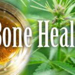 HOW MEDICAL MARIJUANA HELPS IN HEALING FRACTURES